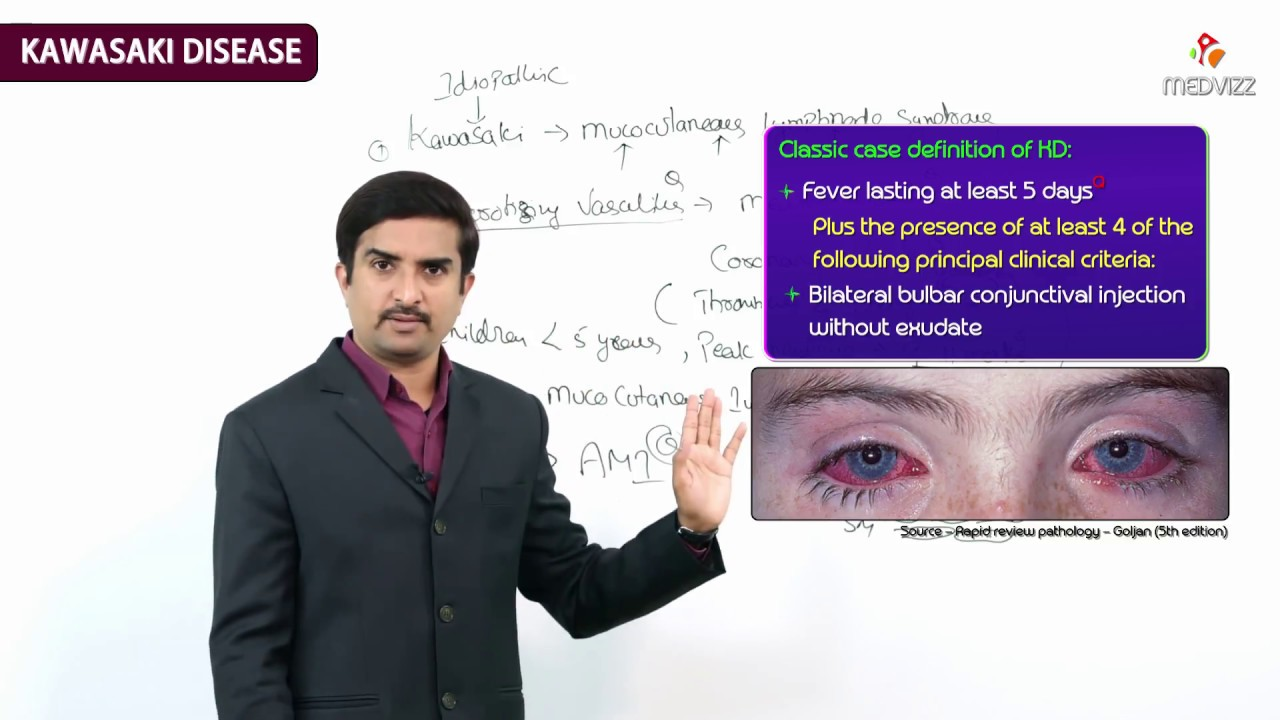 Kawasaki disease (KD), or mucocutaneous lymph node syndrome - FMGE and Neet PG usmle videos