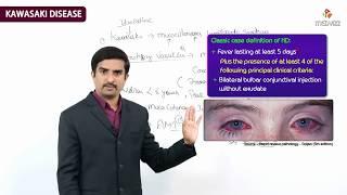 Kawasaki disease (KD), or mucocutaneous lymph node syndrome