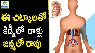Kidney Stones Home Treatment - Health Tips in Telugu || Mana Arogyam