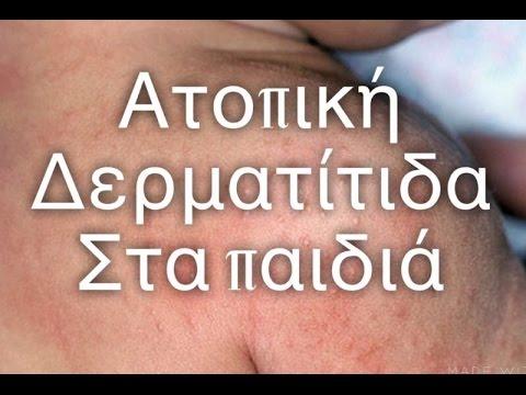 99cf6a9b764 Ατοπικη δερματίτιδα στα παιδιά | #victoriafesencomama - YouTube