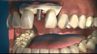 Одномоментная имплантация зубов(, 2015-01-21T18:22:50.000Z)