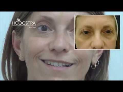 Rejuvenecimiento Facial con Láser de CO2 y Toxina Botulínica (14063)