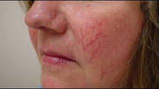 Лечение сосудистой звездочки на лице и теле Как убрать купероз