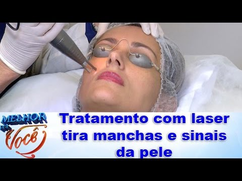 Tratamento com laser tira manchas e sinais da pele