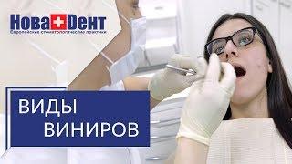 Установка виниров на зубы 😉 Всё, что нужно знать об установке виниров на зубы.  НоваДент.