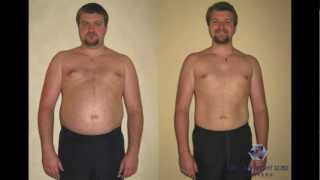 Alex - LOSES 40 lbs using ThinWorks Weight Loss Centers