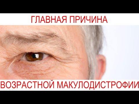 Причина возрастной макулодистрофии. Печерский Офтальмологический Центр