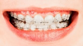 Best Treatments for Crooked Teeth