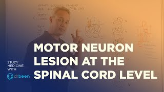 Motor Neuron Lesions at the Spinal Cord Level - Upper And Lower Motor Neuron Deficit