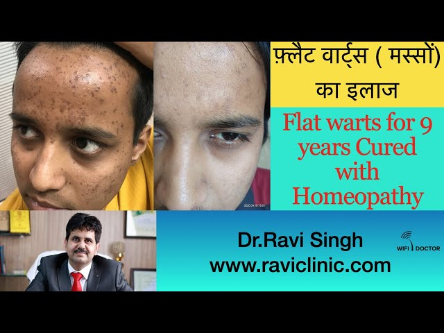 Flat warts for 9 Years Cured by homeopathy Dr.Ravi Singh