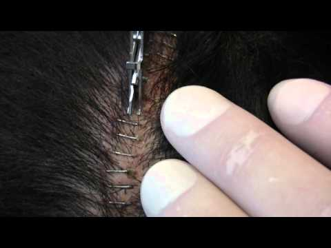 Surgical Staple Removal