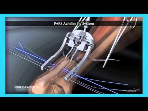 Loyola patient rebounds with minimally invasive Achilles tendon surgery