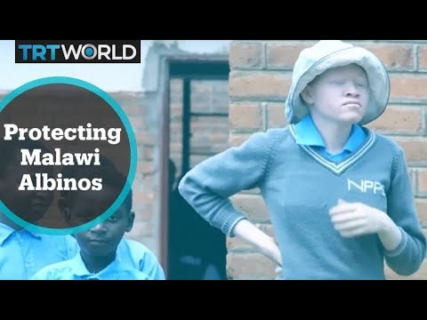 Malawi government clamps down on superstitious practices on people with albinism