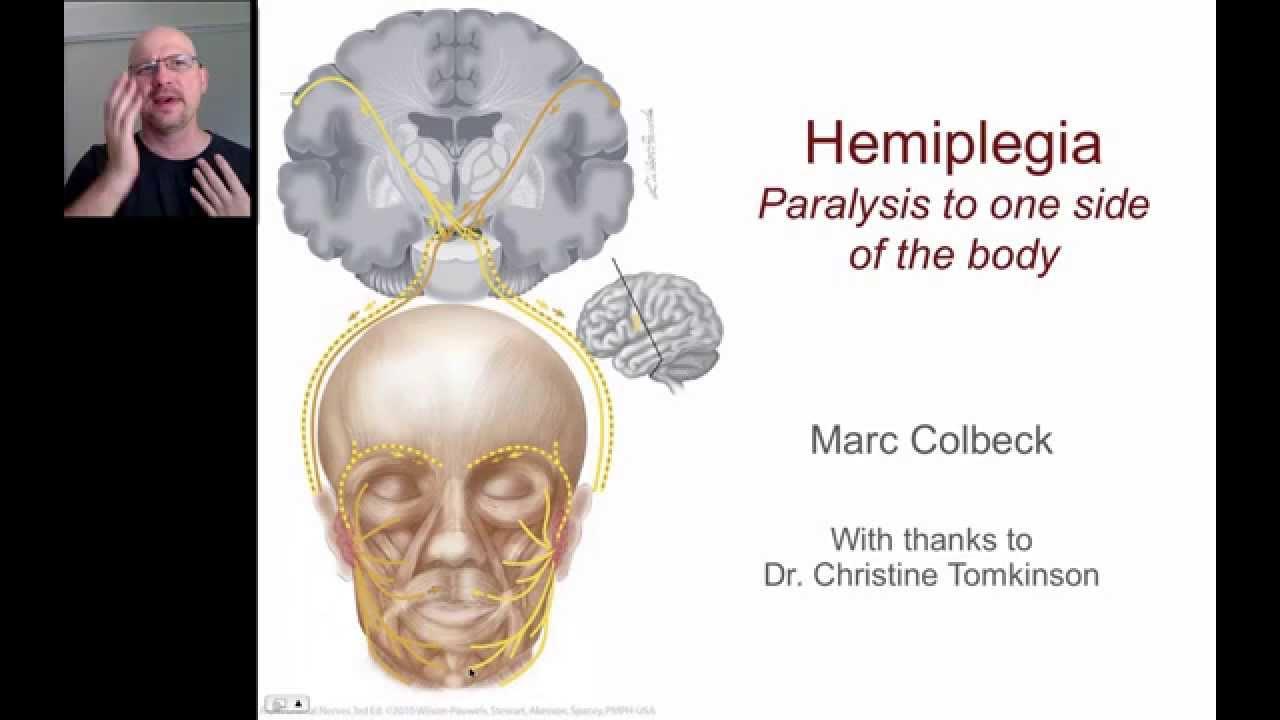 hemiplegia 1 youtube