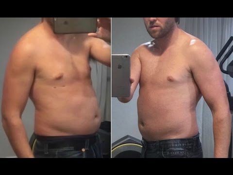 2 30 Day Follow Up Review Blue Fat Freeze System 399