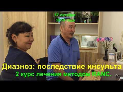 40.Последствие инсульта.Повторный курс.Лечение методом RANC в Казахстане.