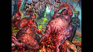 Epicardiectomy- Abhorrent Stench of Posthumous Gastrorectal (full album)
