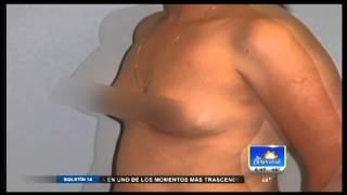 Interview with Dr. Patino - Breast Augmentation - Al Despertar Thumbnail