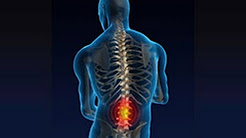 hqdefault - Back Pain Specialist Folsom, Ca