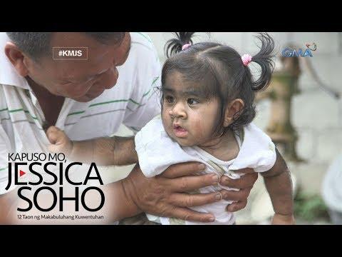 Kapuso Mo, Jessica Soho: Sanggol na may kakaibang kondisyon, nangangailangan ng tulong