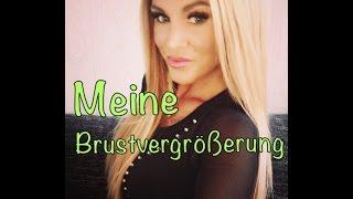 Meine Brustvergrösserung / Breast Implant  German(In diesem Video teile ich mit euch meine Erfahrungen über meine Brustvergrösserung ... sollten dennoch Fragen offen sein oder ihr habt auch etwas zu ..., 2015-07-10T10:17:41.000Z)
