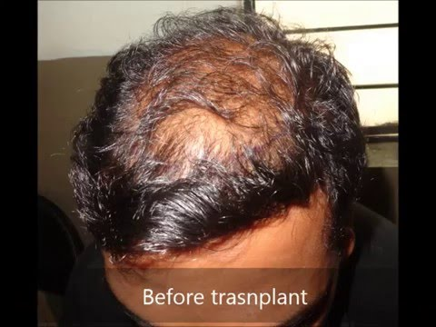 FUE hair transplant--best technique if performed with the best hands