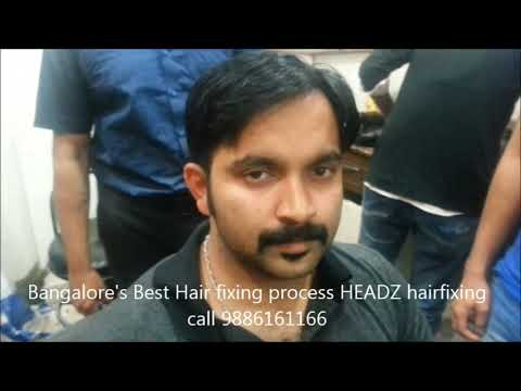 Natural,Non surgical,Permanent Hair fixing 9886161166 in Bangalore,Chennai,Kerala.