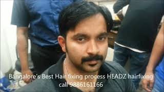 Hair fixing 9886161166 in Bangalore,Chennai, Kerala advanced natural non surgical permanent