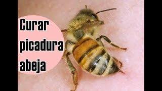 La hinche una lo se que que abeja de picadura hace
