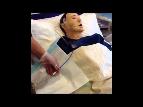 Nursing care of nasogastric tube