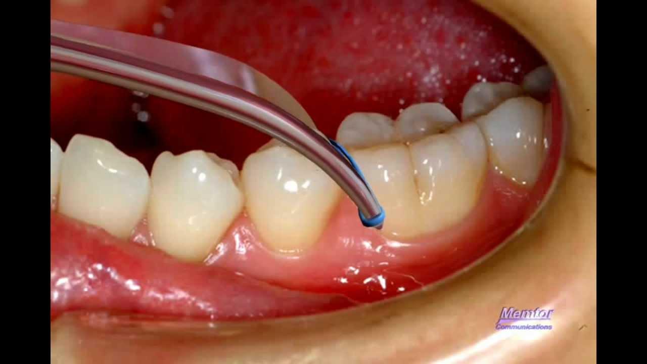 Orthodontic Separator Orthodontist Braces Youtube