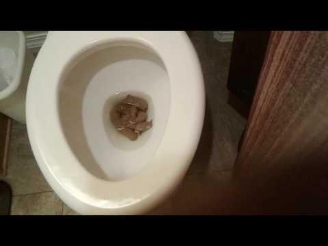 My poop