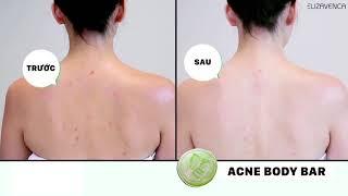 Xà phòng và serum trị mụn lưng Elizavenca Ance Body Bar - 0932018020