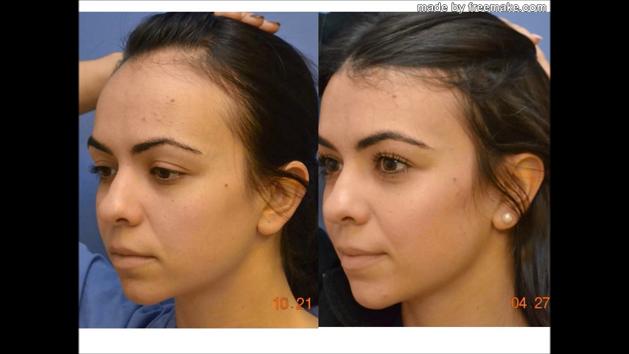 HAIR LINE LOWERING FOREHEAD REDUCTION - YouTube