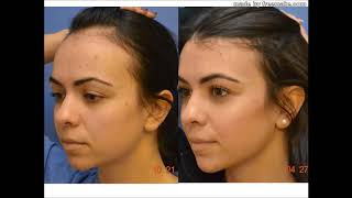 Video HAIR LINE LOWERING FOREHEAD REDUCTION download MP3, 3GP, MP4, WEBM, AVI, FLV September 2018