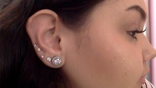 *UPDATED* Ear Keloid Removal | Amanda Mazzola