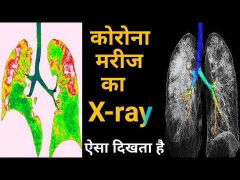 Corona Virus : कोरोना मरीज का X- Ray ऐसा दिखता है