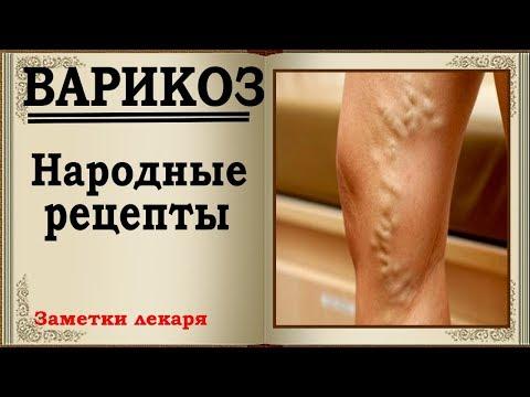 Как лечить варикоз на ногах в домашних условиях у женщин