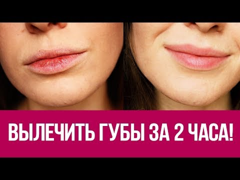 Что делать когда обветрились губы и болят