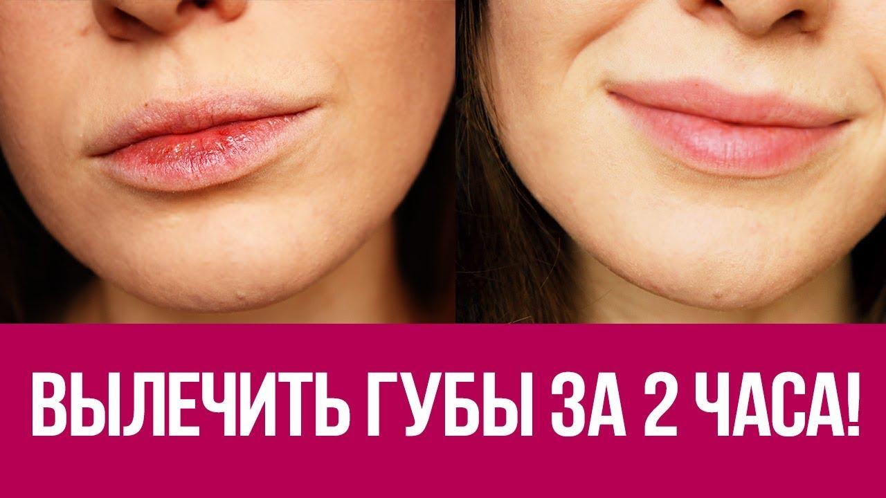 Как быстро восстановить губы?