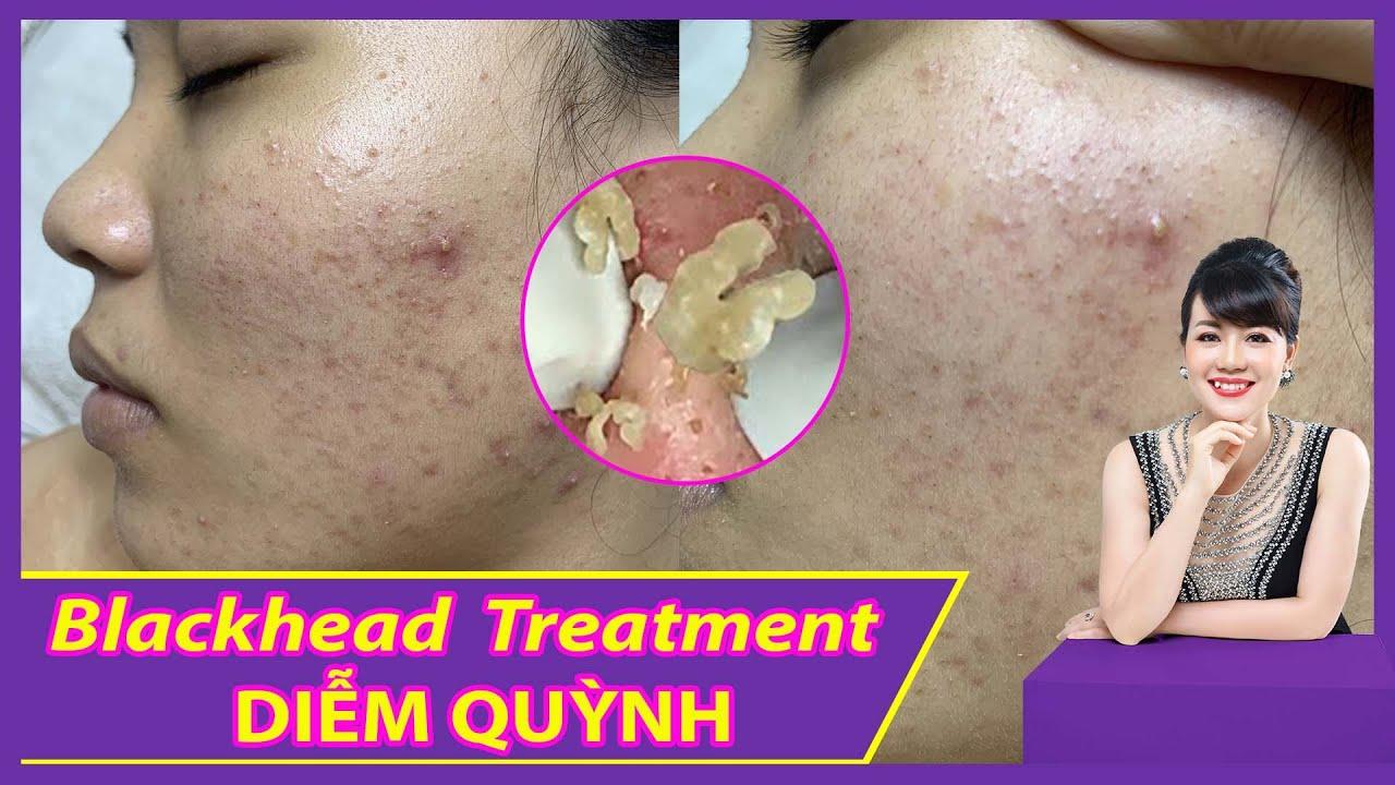Blackhead Acne Removal| Điều trị mụn hiệu quả số 1 TPHCM| Hiền Vân Spa | Võ Diễm Quỳnh |554