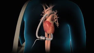 Left Ventricular Assist Device | LVAD | Nucleus Health