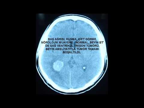 Baş ağrısı kusma çift görme şikayetleri olan hastanın beyin tümörü (ventrükül içerisi) beyin tümörü tespit edildi. mikroskopla tümörün tamamı alındı. tatlil iyi huylu (menengiom). şikayetleri tamamen geçen hasta eski işine döndü.