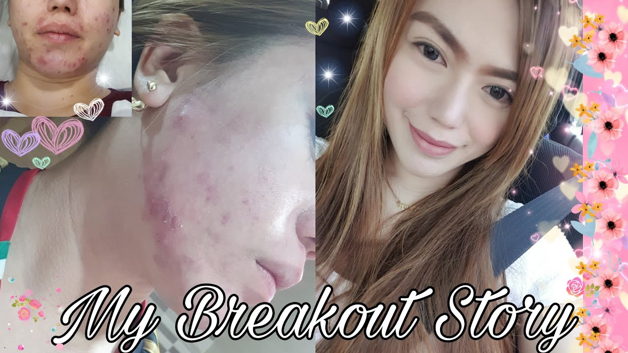 Athena Beauty & Skin Care Dubai | My Worst Breakout Experience | Honest Review