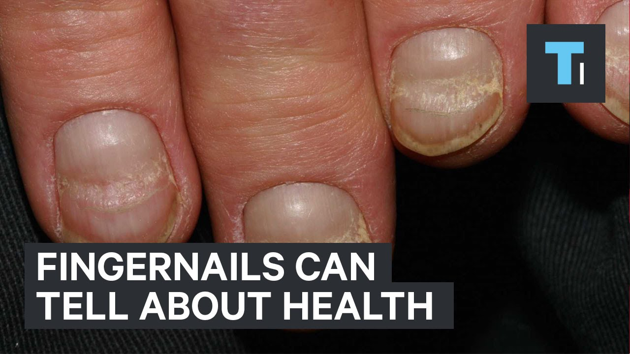 Fingernails can tell about health - YouTube