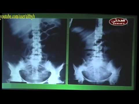 pneumoperitoneum intestinal obstruction femoral hernia and gallstone ileus radiology كورس اشعة