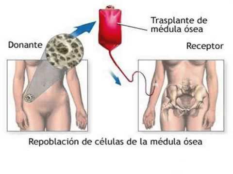 Qué es la leucemia