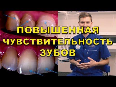 Что делать если болят передние нижние зубы