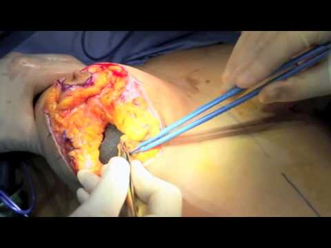 Breast mastoplexy and augmentation