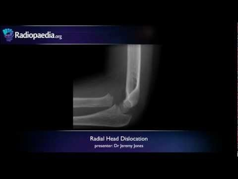 Radial head dislocation - radiology video tutorial (x-ray) thumbnail